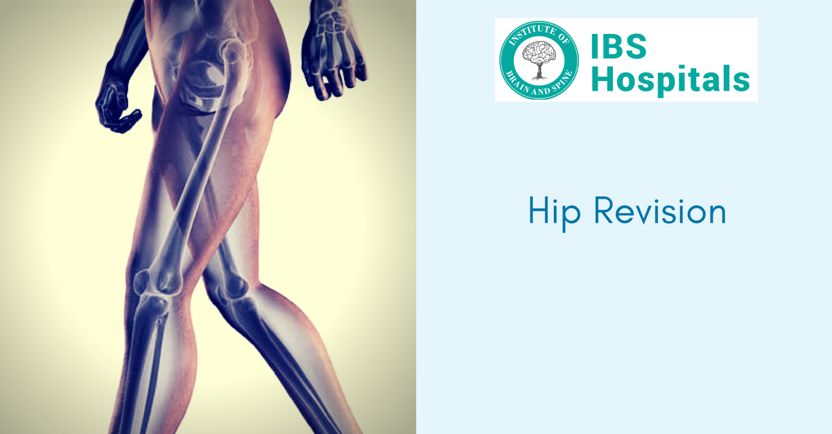 Best Hip Revision Surgery in India | IBS Hospital